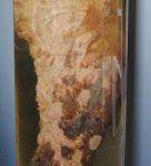 Takonykóros fekély (ÁTE Patológiai Tanszék múzeuma)